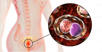 مراقب عفونت کلامیدیا باشید ! علائم و راههای پیشگیری از انتقال بیماری کلامیدیا