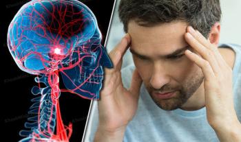 علائم سکته مغزی: نشانه های سکته مغزی چیست؟