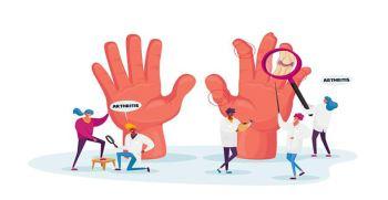 همه چیز درباره بیماری آرتریت روماتوئید | علائم و درمان